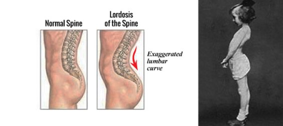 What-factors-contribute-to-lordosis-curves-of-spine